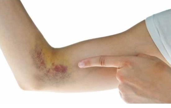 Синяк на руке – обычная вещь или опасная гематома